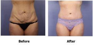tummy tuck compress.jpeg
