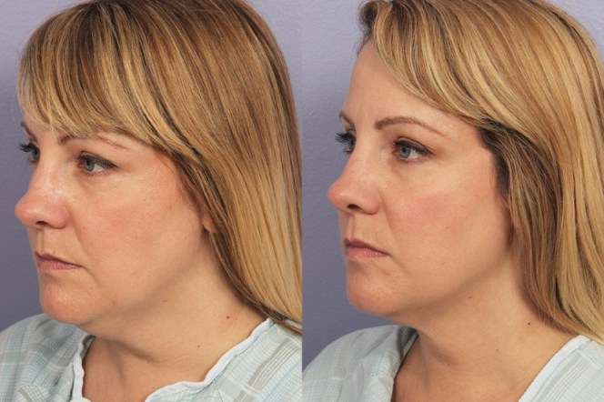 cool-sculpting-before-after-double-chin