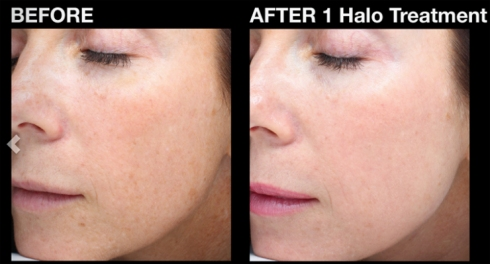 halo-before-after-1
