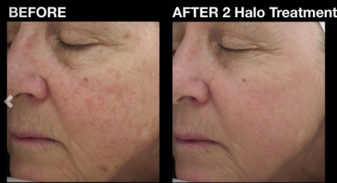 halo-before-after-2