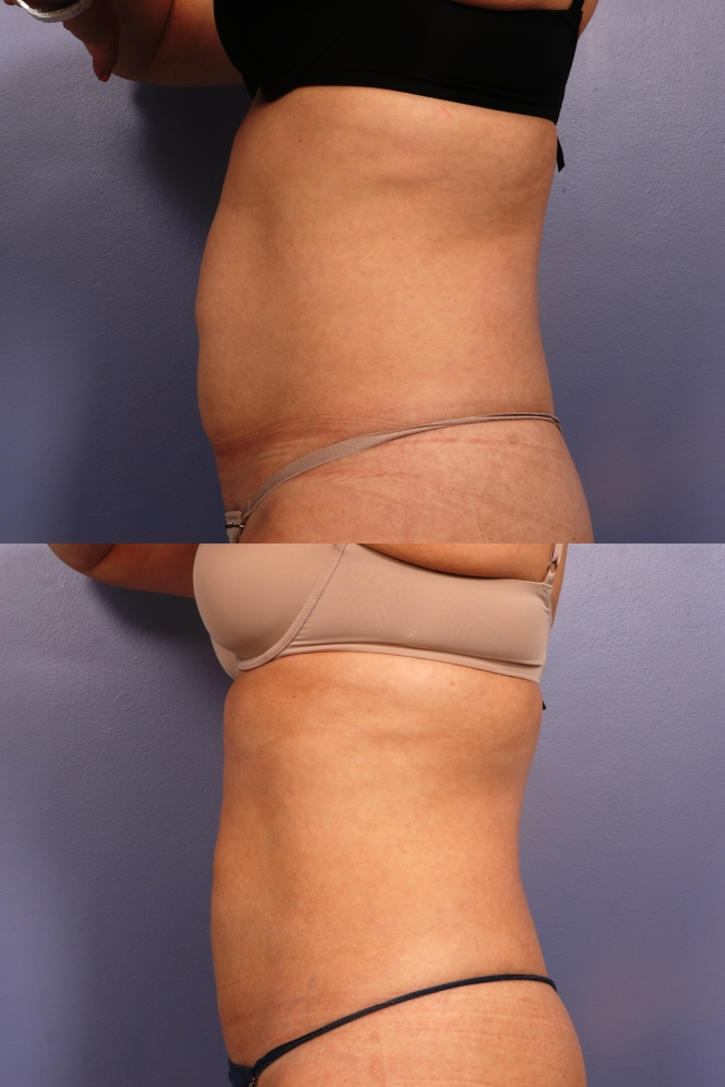 36 year old female has 2 sessions of CoolSculpting